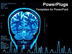 PowerPoint template displaying blue brain MRI, black background, brain scan
