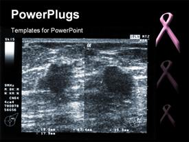 PowerPoint template displaying ultrasound depiction of breast tumor with breast fighting pink ribbon