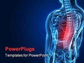 PowerPoint template displaying anatomy depiction of a human skeletal back with pain
