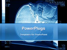 Brain tomography detail for diagnose of brain disease powerpoint theme