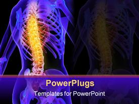 PowerPoint template displaying a human skeletal back with a painful