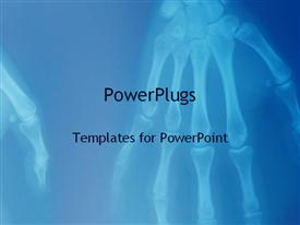 PowerPoint template displaying x-ray of human hands showing skeleton of hand fingers