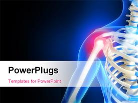PowerPoint template displaying human anatomy showing pain in shoulder with black and blue color