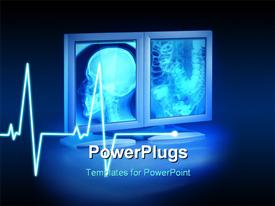 PowerPoint template displaying large X-rays viewed hospital high end monitors ecg wave background